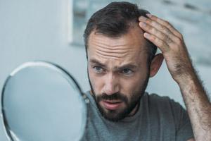 Mann Haarausfall Geheimratsecken Micro Pigentierung